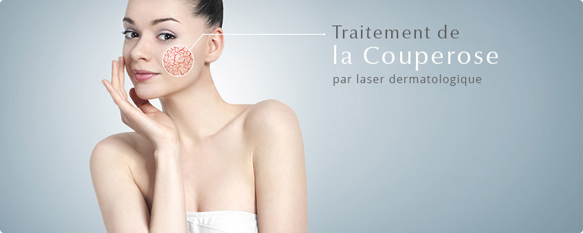 Couperose-traitement-laser