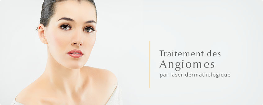 angiomes-laser-lyon