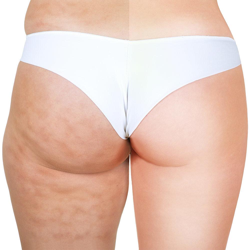 cellulite-fesse