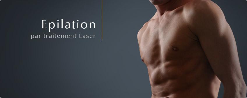 epilation-laser-homme-lyon
