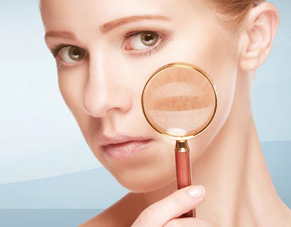 traitement taches pigmentaires lyon