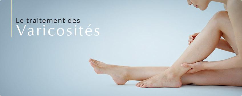varicosites