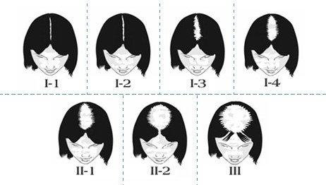classification de Ludwig
