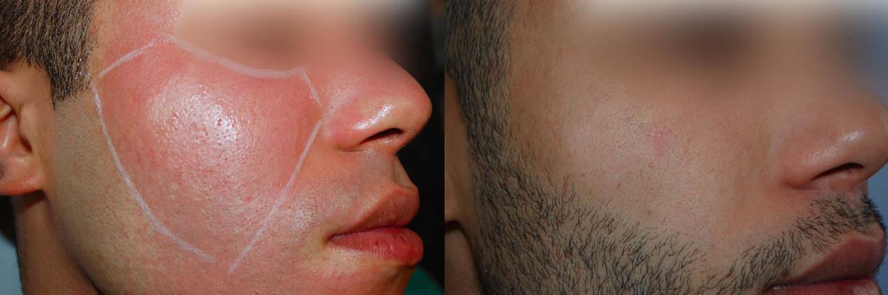 Cicatrices_04_Centre Dermatologique Lyon