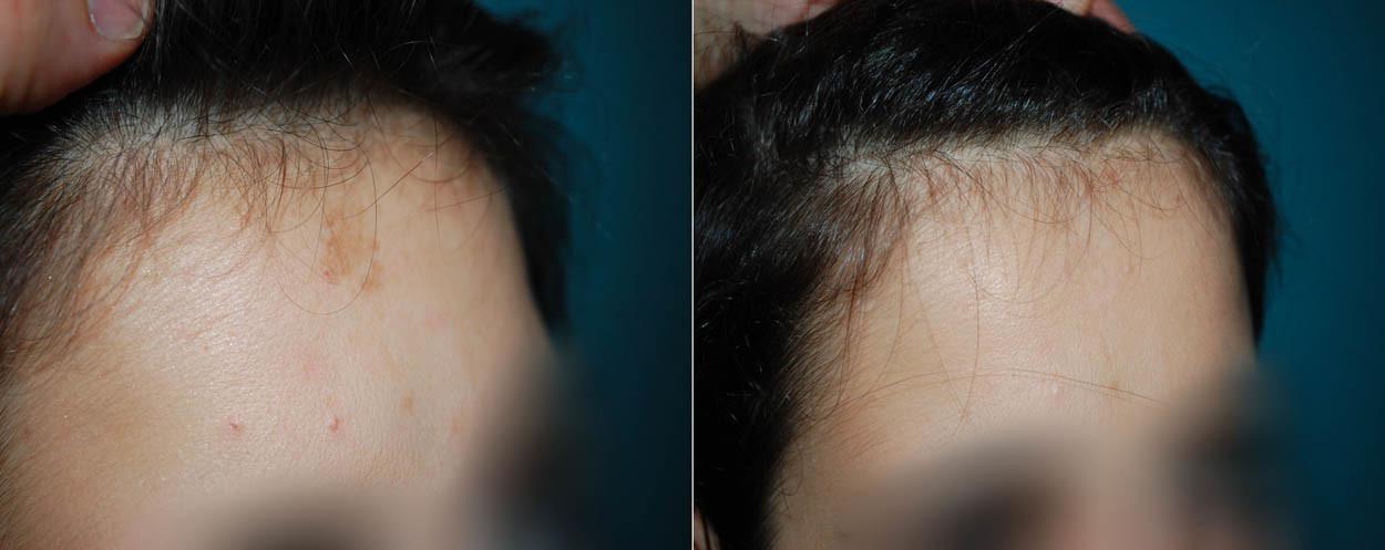 Hyperpigmentation_01_Centre Dermatologique Lyon