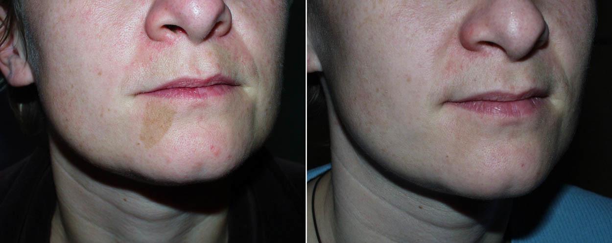 Hyperpigmentation_02_Centre Dermatologique Lyon