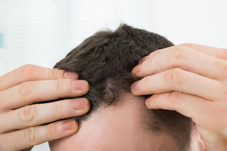 Comment Traiter La Perte Des Cheveux ?