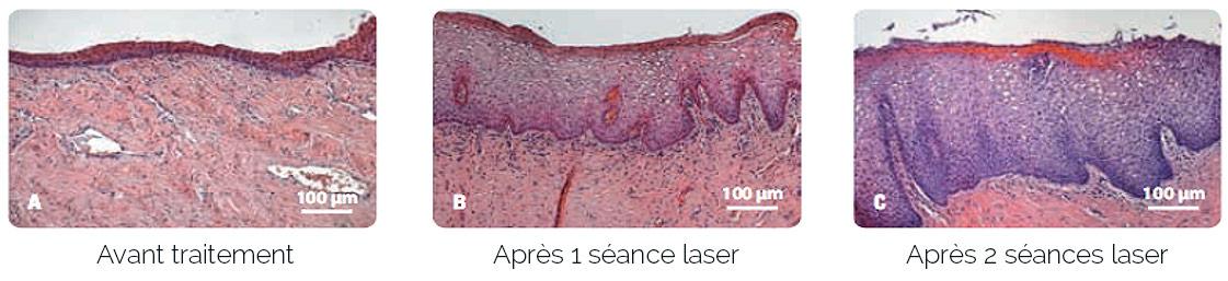 schema-traitement-laser